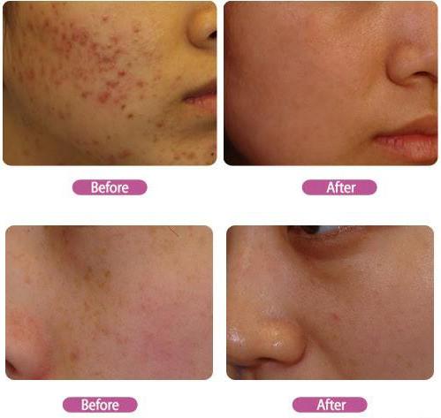 acne pimples rosacea