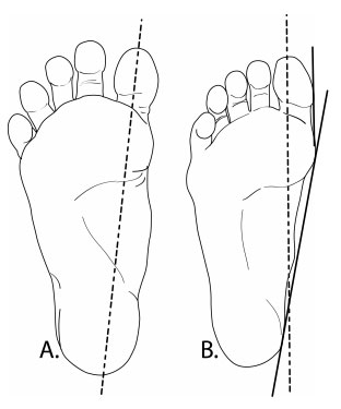 Anatomy of hallux valgus  Images of foot