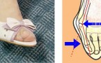 Biomechanics of hallux valgus and spread foot