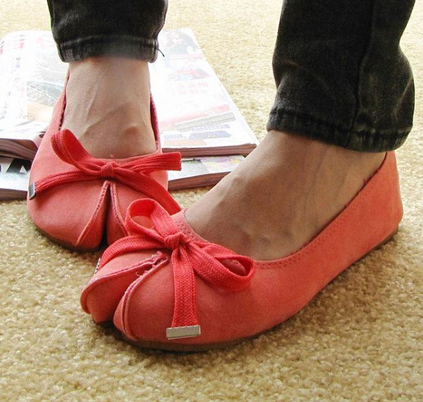 How to Choose Shoes for Hallux Valgus. Comfortable Shoes