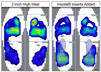 Diagnosis of Hallux Valgus. Pressure Mapping Systems. Customer Success Story: Insolia®