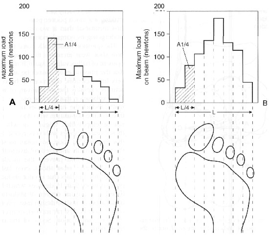 Peak loads recorded across the forefoot in a typical normal and a typical hallux valgus foot.