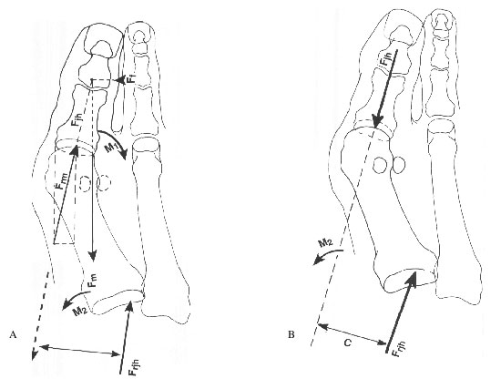 Biomechanics of hallux valgus and spread foot.